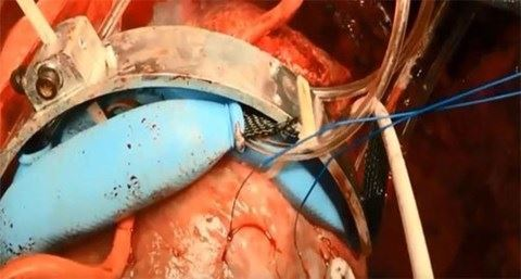 Vòng tay robot giúp duy trì sự sống cho những người bị suy tim
